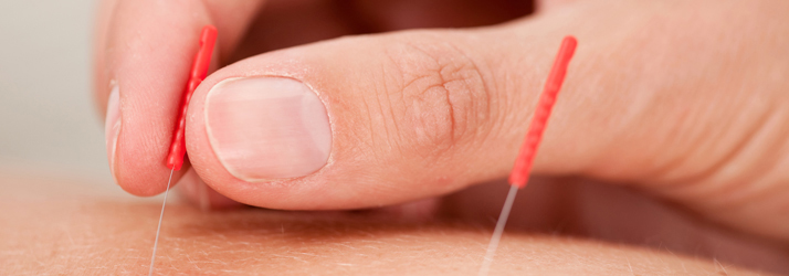 Acupuncture For High Cholesterol in Waukesha WI